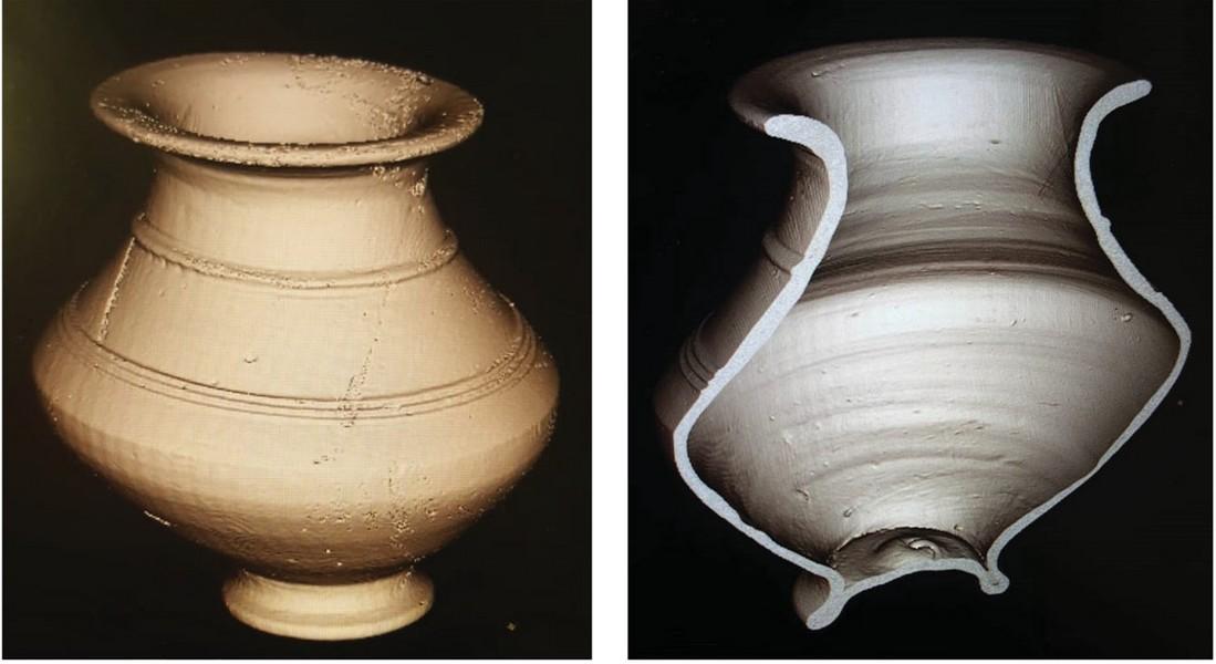 Imágenes tomográficas del recipiente 153V: vistas exterior e interior